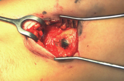 Understanding Sentinel Node Biopsy